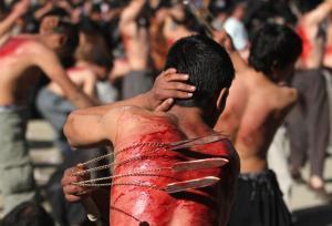 Shia smärta